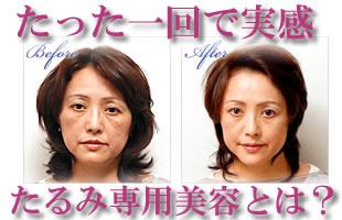 たるみ専門美容イメージ